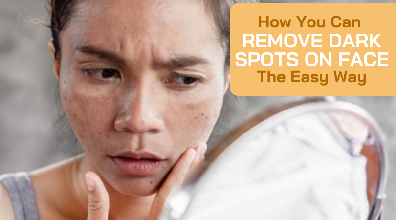 How You Can Remove Dark Spots on Face The Easy Way
